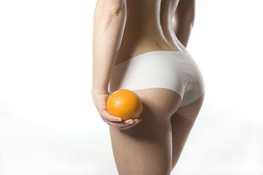 Cellulite behandeln in München | Prof. Dr. Kovacs