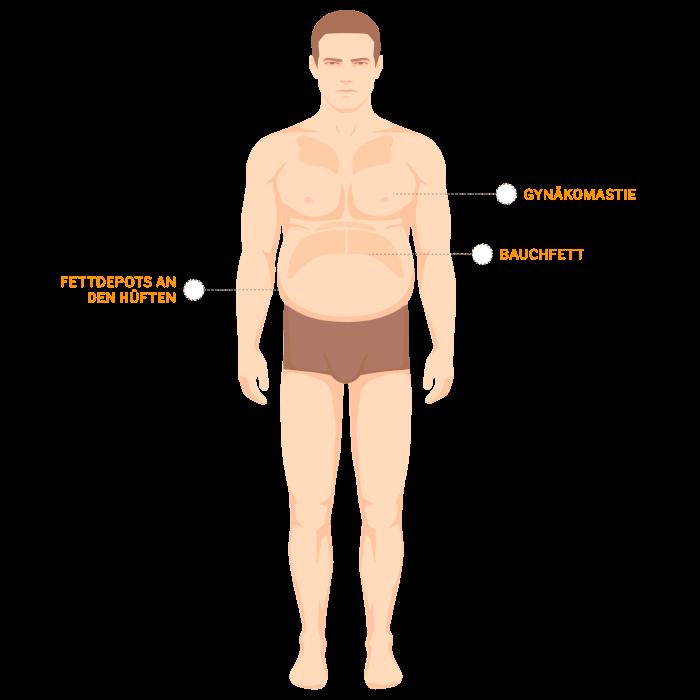 liposuktion mann